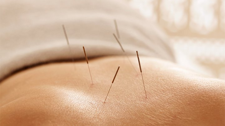 What is Acupuncture and How it Can Help You